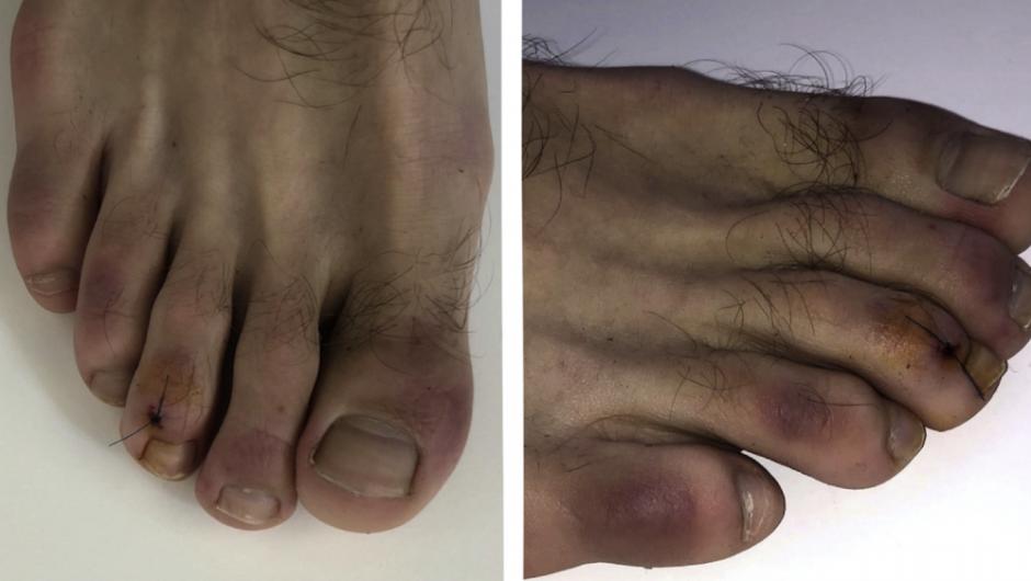 """""""COVID toes"""" may be coronavirus symptom"""