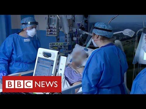 NHS leaders warn of intense pressure as Covid cases surge across UK – BBC News